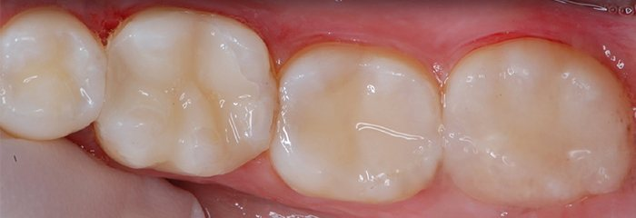 Teeth with tooth-colored fillings