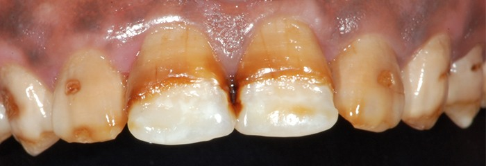 Severely decayed teeth