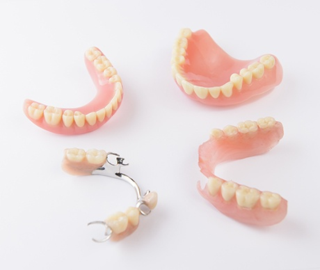 Four types of dentures