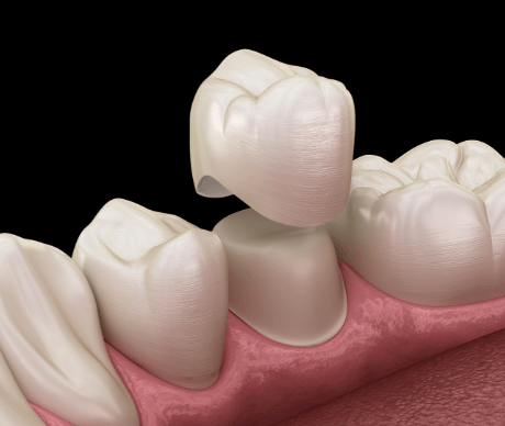 Animation of dental crown placement