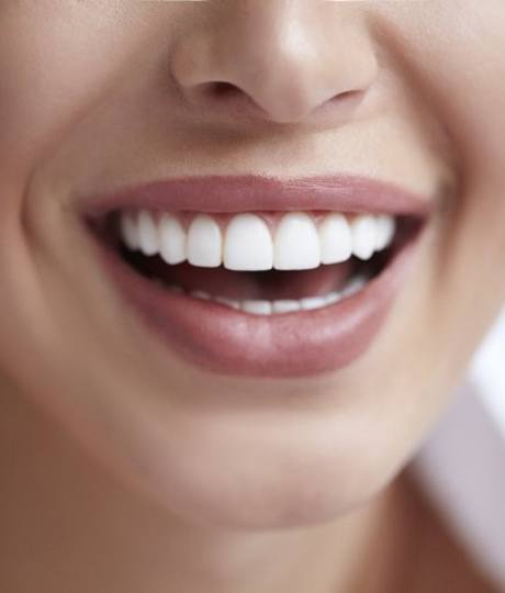 close up person smiling with porcelain veneers in Vienna