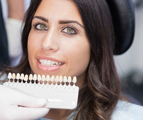 woman posing with veneers